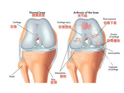 膝关节康复训练方法图解